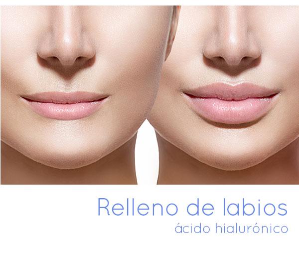 Relleno de labios ácido hialurónico
